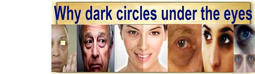 Why dark circles under the eyes appear?